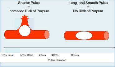 Pulsedulation